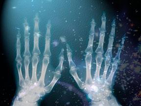 Spiritual X Rays